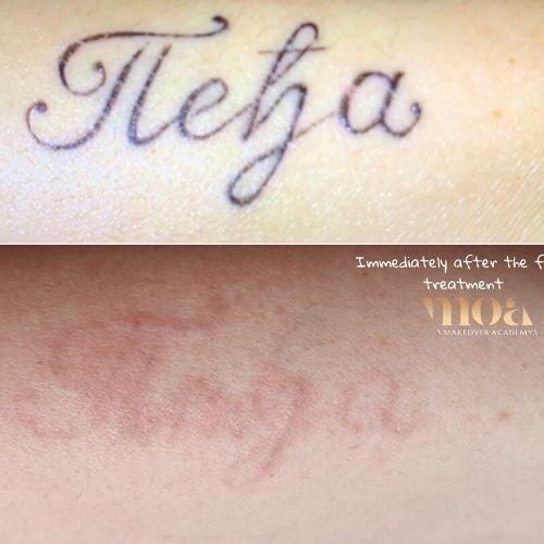 lasersko uklanjanje tetovaže